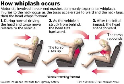 Whiplash Injury Austin Texas